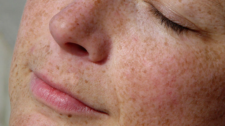 лучшее средство от пигментных пятен на лице