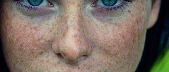 домашние средства от пигментных пятен на лице
