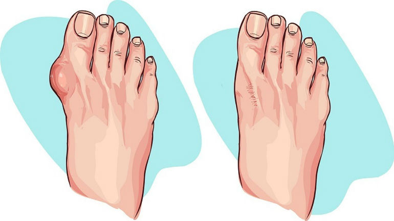 Косточка на ноге: как лечить народными средствами без операции